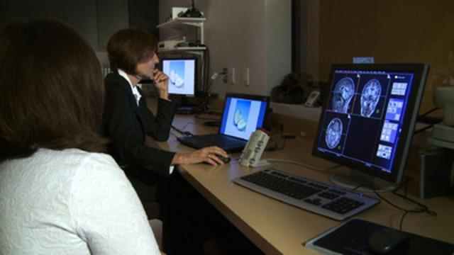 Video: La vie ne s'arrête pas après un AVC. La neuroimagerie fonctionnelle au service du langage.