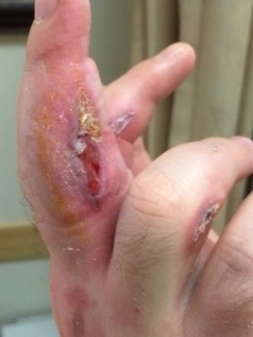 April 14 / 24 hours after first infusion - Surgical wounds middle, index & ring fingers: (CNW Group/ProMetic Life Sciences Inc.)