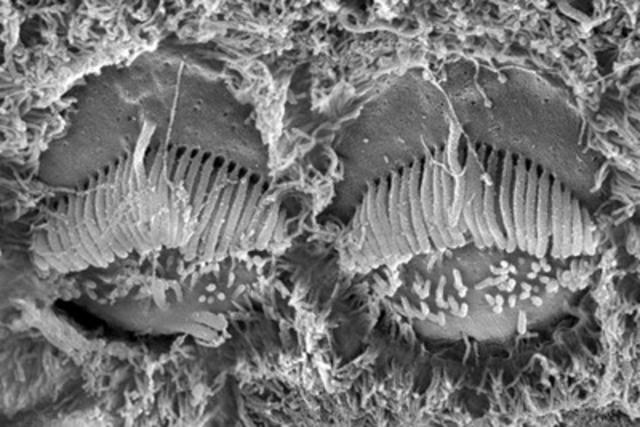 Vue « aérienne » de la surface de deux cellules ciliées voisines dans l'oreille interne © IRCM. Sur ces cellules de souris en développement, on peut remarquer des stéréocils de grande taille, qui forment une brosse en forme de V pointant vers le haut. (Groupe CNW/Institut de recherches cliniques de Montréal (IRCM))