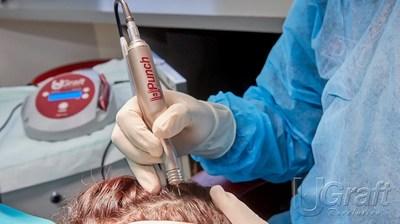 طبيب الجراحة الجلدية في لوس أنجلوس يحل مشاكل زرع الشعر للأفارقة بتقنيتين جديدتين