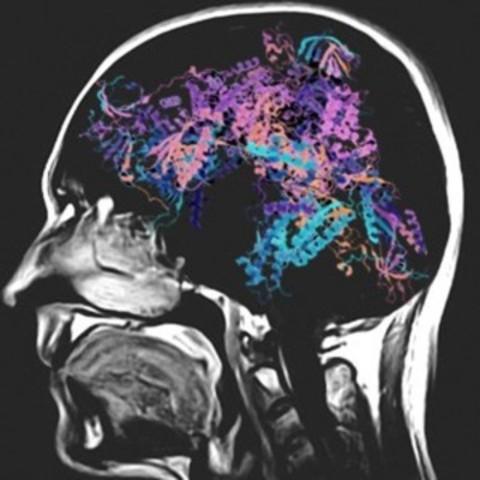 Découverte par des chercheurs de l'IR-CUSM et l'IRCM : image de synthèse d'une tête en imagerie par résonance magnétique nucléaire (RMN), une technique à la base du diagnostic clinique des leucodystrophies. Ici, le cerveau est remplacé par la structure 3D d'un ARN polymérase, l'enzyme ciblée par les mutations dans POLR1C. (Groupe CNW/Institut de recherches cliniques de Montréal (IRCM))