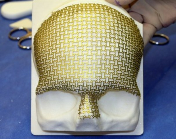 A custom titanium mesh implant created during surgery using technology from Calavera Surgical Design. (CNW ...
