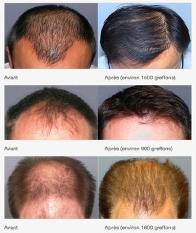 Photos avant & après (Groupe CNW/Médecine Esthétique Dr. Yves Hébert)