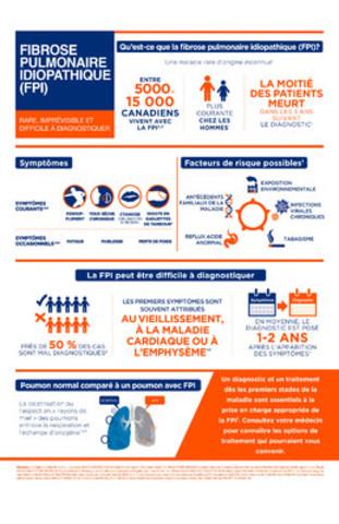 La fibrose pulmonaire idiopathique (FPI) est une maladie pulmonaire rare, progressive et incurable. Jusqu'à ce jour, les options de traitement pour les 5000 à 15 000 Canadiens aux prises avec cette maladie étaient rares. (Groupe CNW/Boehringer Ingelheim (Canada) Ltd.)