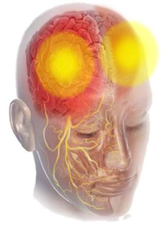 La migraine chronique est un trouble neurologique distinct et grave. Le profil des personnes atteintes est caractérisé par des antécédents de migraines, la survenue de céphalées 15 jours ou plus par mois pendant une période d'au moins trois mois, et par des épisodes de migraines au moins huit jours par mois.(Groupe CNW/Allergan Inc.)