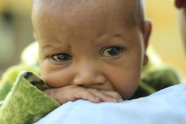 © UNICEF/UNI169762/Clark En Éthiopie, le jeune Abinet n'a que 3 mois et il a contracté la pneumonie. Un adulte en santé respire environ 12 fois en une minute, mais un enfant atteint de la pneumonie va devoir prendre jusqu'à 60 courtes et douloureuses respirations. La pneumonie demeure la principale maladie infectieuse tueuse d'enfants âgés de moins de cinq ans. (Groupe CNW/UNICEF Canada)