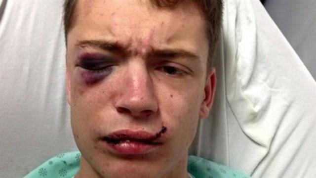 Mathieu Grégoire, victime d'agression homophobe (Groupe CNW/FONDATION JASMIN ROY)