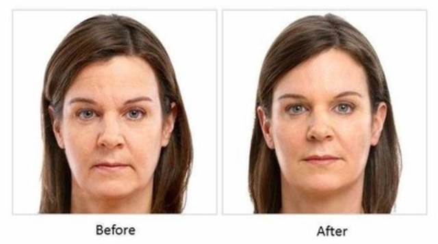 Actual treatment results may vary from one person to another. In addition to JUVÉDERM, the woman in this photo also received another cosmetic injectable to specific areas of the face. (CNW Group/Allergan)