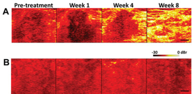 WaveCheck comparison image: Yellow indicates where tumour tissue is responding to chemotherapy; red indicates no chemotherapy response. (CNW Group/MaRS Innovation)