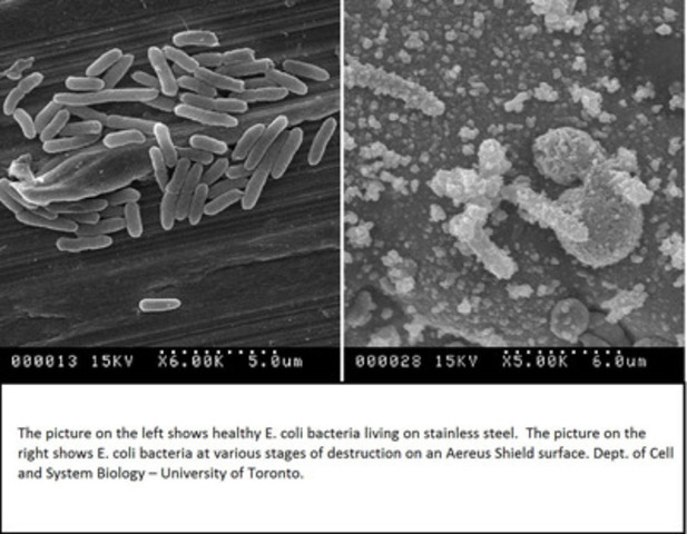 The picture on the left shows healthy E. coli bacteria living on stainless steel. The picture on the right shows E. coli bacteria at various stages of destruction on an Aereus Shield surface. Dept. of Cell and System Biology-University of Toronto (CNW Group/Aereus Technologies Inc.)