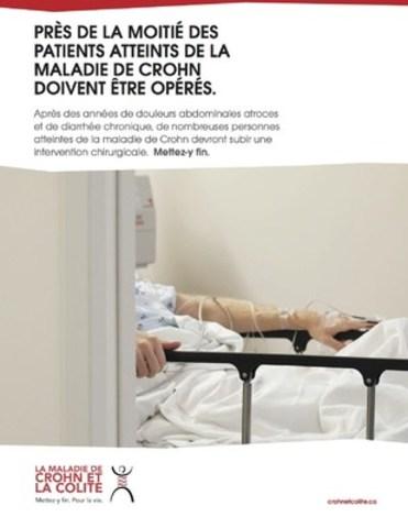 PRÈS DE LA MOITIÉ DES PATIENTS ATTEINTS DE LA MALADIE DE CROHN DOIVENT ÊTRE OPÉRÉS. Ce message d'intérêt public est disponible au téléchargement. (Groupe CNW/Crohn et Colite Canada)