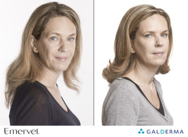 EMERVEL® ajoute du volume et adoucit les rides pour un effet naturel immédiat. (Groupe CNW/Galderma Canada)