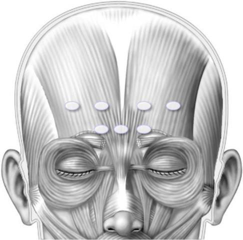 Illustration des points d'injection recommandés pour l'administration de BOTOX® (onabotulinumtoxine A) au niveau des muscles du front. (Groupe CNW/Allergan Inc.)