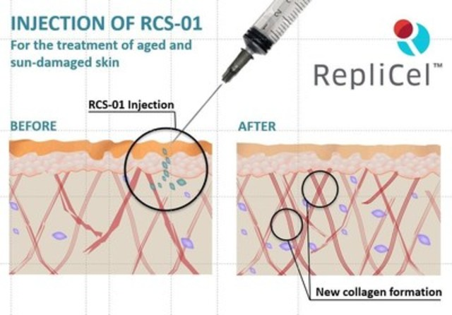 RepliCel's RCS-01 Skin Rejuvenation Product (CNW Group/RepliCel Life Sciences Inc.)