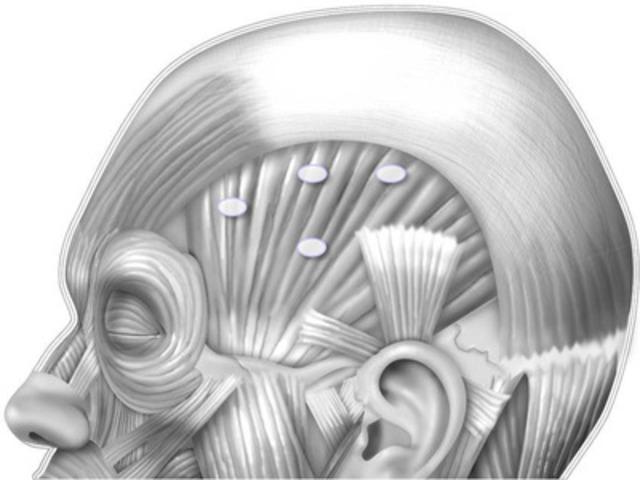 Illustration des points d'injection recommandés pour l'administration de BOTOX® (onabotulinumtoxine A) au niveau des muscles de la tête. (Groupe CNW/Allergan Inc.)