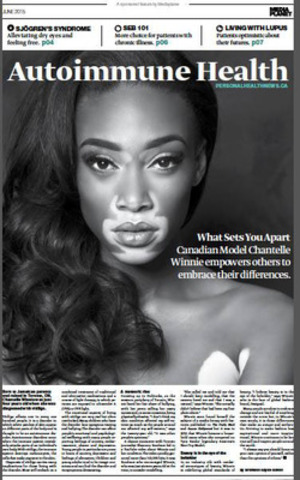 What Sets You Apart - Canadian Model Chantelle Winnie empowers others to embrace their differences (CNW Group/Mediaplanet Ltd)