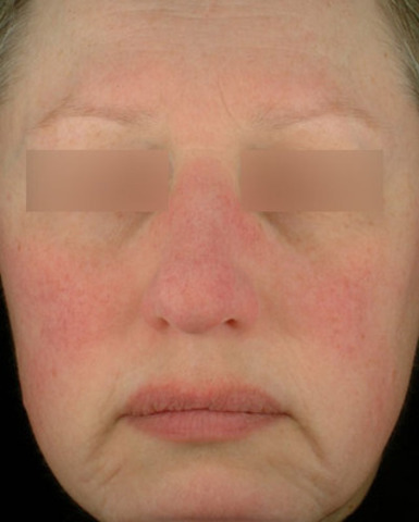 In a recent survey by the Acne and Rosacea Society of Canada, when shown this image of persistent redness in the central face - the #1 sign of rosacea - 7 in 10 Canadians were unable to recognize rosacea. (CNW Group/Dr. Jerry Tan)