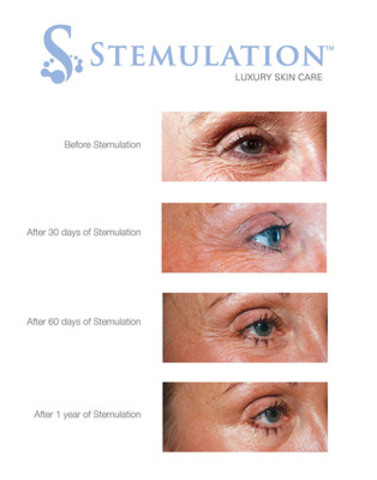 The Future of Skin Care: Stemulation Facial Serum and Boost Crème used over 1 year. (CNW Group/Sigmacon Skin Sciences)
