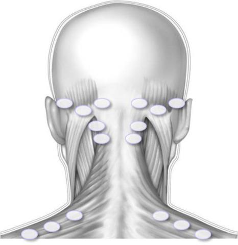 Illustration des points d'injection recommandés pour l'administration de BOTOX® (onabotulinumtoxine A) au niveau des muscles des épaules et de la tête. (Groupe CNW/Allergan Inc.)