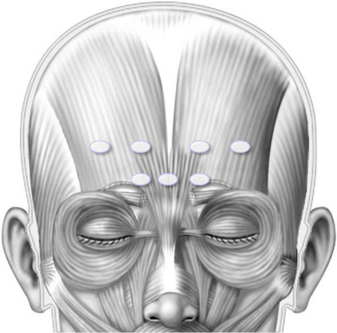Illustration of recommended BOTOX® (onabotulinumtoxinA) injection sites in the forehead muscle area. (CNW Group/Allergan Inc.)