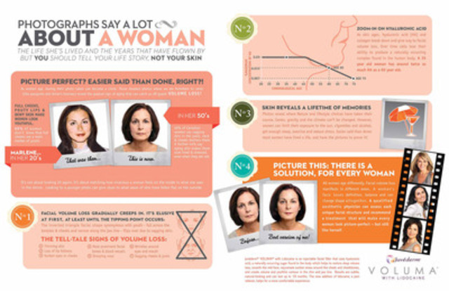 Juvederm VOLUMA with Lidocaine Infographic (CNW Group/Allergan Inc.)