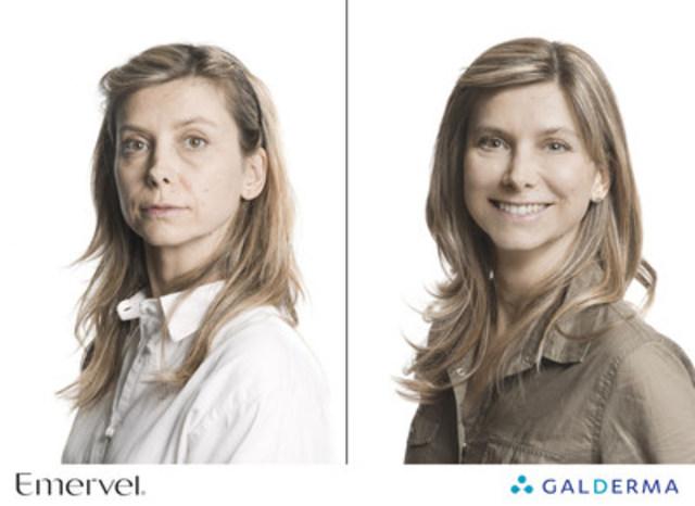 La gamme de produits EMERVEL® permet un traitement personnalisé adapté aux besoins dermatologiques spécifiques du patient. (Groupe CNW/Galderma Canada)