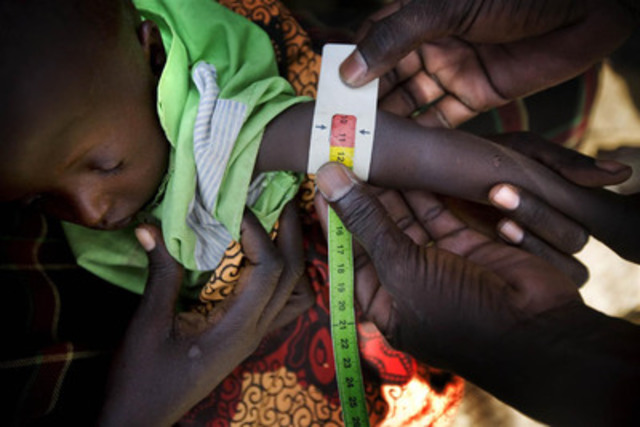 A sleeping child's upper arm is measured by a nurse during a UNICEF-assisted nutrition screening in Longelop Village, Kenya. The measurement, using a mid-upper arm circumference (MUAC) armband, is taken to assess a child's nutrition status. The red section of the armband indicates that he is severely malnourished and in need of urgent treatment.(CNW Group/UNICEF Canada)