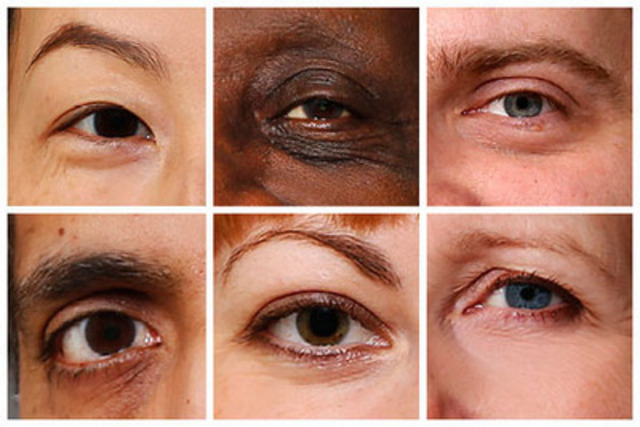 Eye spy a serious eye disease? Not necessarily. Many eye diseases have no symptoms and can only be detected through a comprehensive eye exam from a Doctor of Optometry. (CNW Group/CNIB)