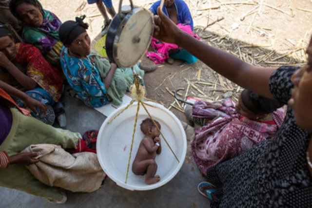 In Ethiopia, a tiny baby boy sleeps while being weighed in a sling-scale during a nutrition screening at the ...