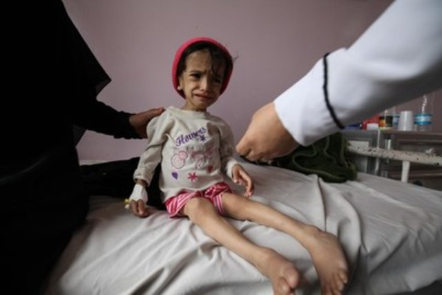 On July 30, 2015, two-year-old Hanadi was admitted to Sabeen Hospital in Yemen's capital, Sana'a, for treatment. She is malnourished, weak and can't walk. Her mother says since the conflict escalated, the family has mainly survived on bread whenever they can find it. © UNICEF/UNI191720/Yasin (CNW Group/UNICEF Canada)